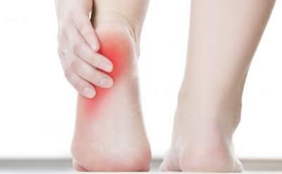Как облегчить боли при подагре: советы медиков
