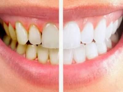 Стоматологи рассказали, как бороться с зубным камнем