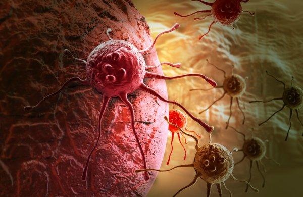 Baidu создала технологию с ИИ, точно диагностирующу рак