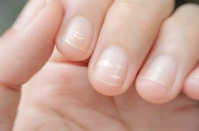 Медики объяснили, из-за чего могут появиться белые пятна на ногтях