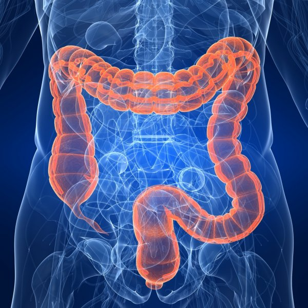 Ученые выявили, ожирение ведет к росту раковой опухоли прямой кишки