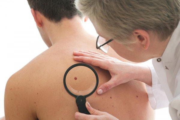 Британские онкологи назвали самый верный симптом рака кожи