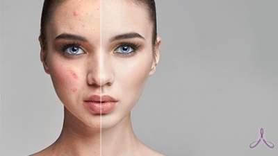 Диетологи назвали продукты, помогающие очистить кожу лица