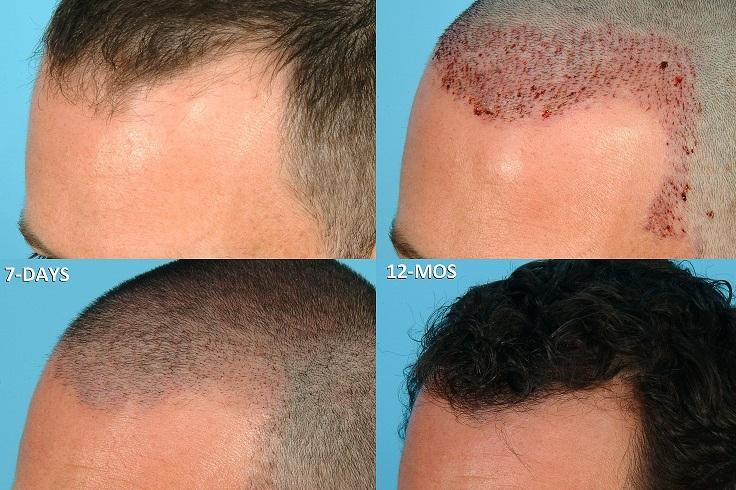 Спаси свои шикарные волосы