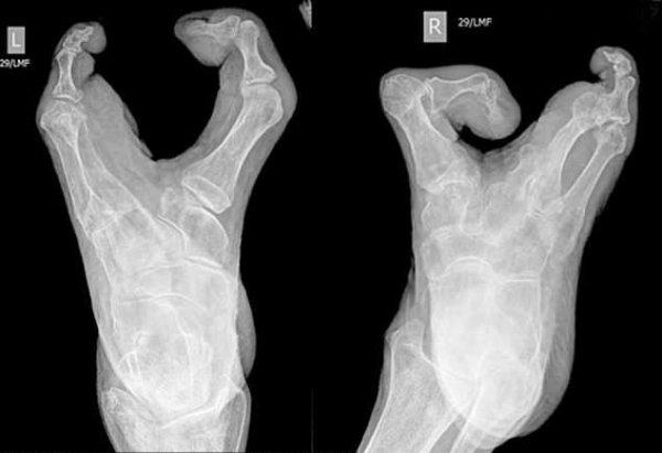 94-летняя женщина с аномальными «ногами-клешнями» шокировала медиков