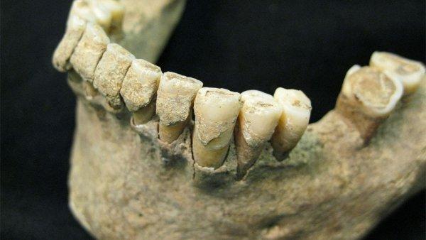 Американские рабочие нашли тайник в стене с тысячей человеческих зубов