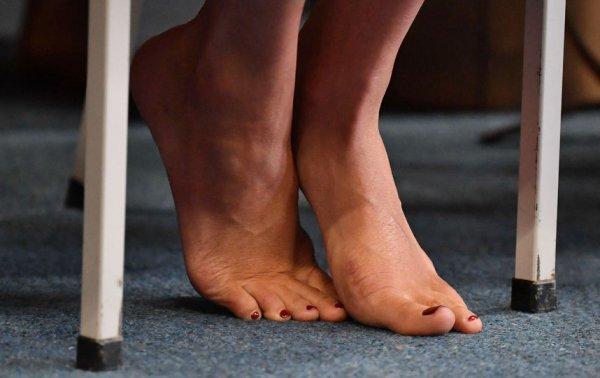 Расплата за шпильки: Меган Маркл показала устрашающий шрам
