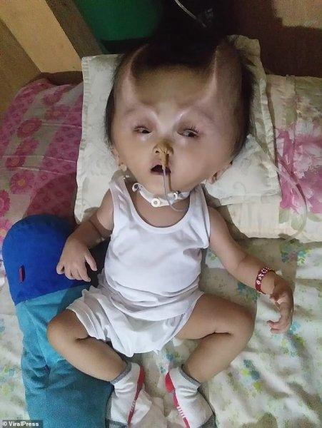 Мальчик, родившийся с редкой болезнью мозга, остался с «дьявольскими рогами»