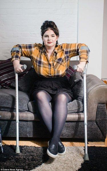 22-летнюю девушку из США почти парализовало при родах