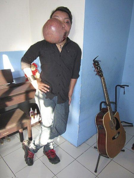 Мексиканскому музыканту удалили опухоль размером с мяч с помощью молотка и зубила
