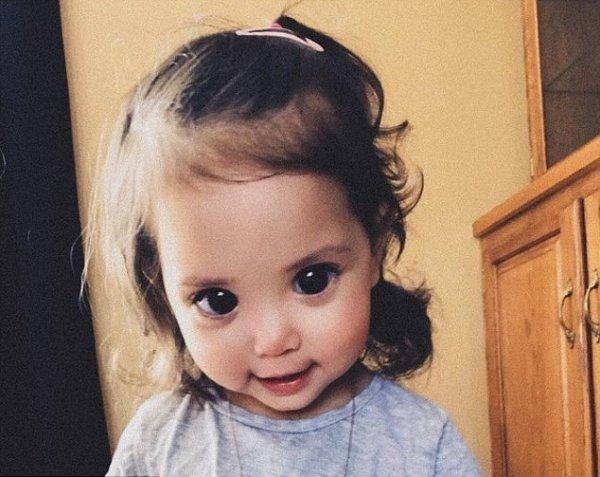 Большие глаза и ангельское лицо: Редкое генетическое расстройство превратило девочку в «фею»