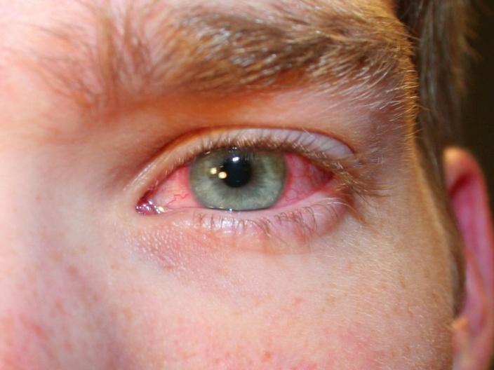 Причины покраснения белков глаз